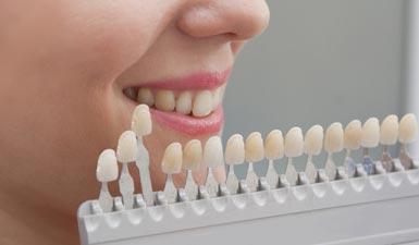 teeth-colored